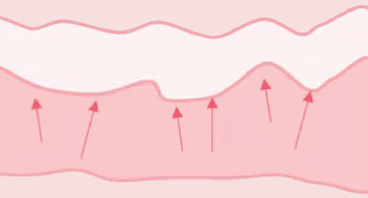 Collagen Effect (After)